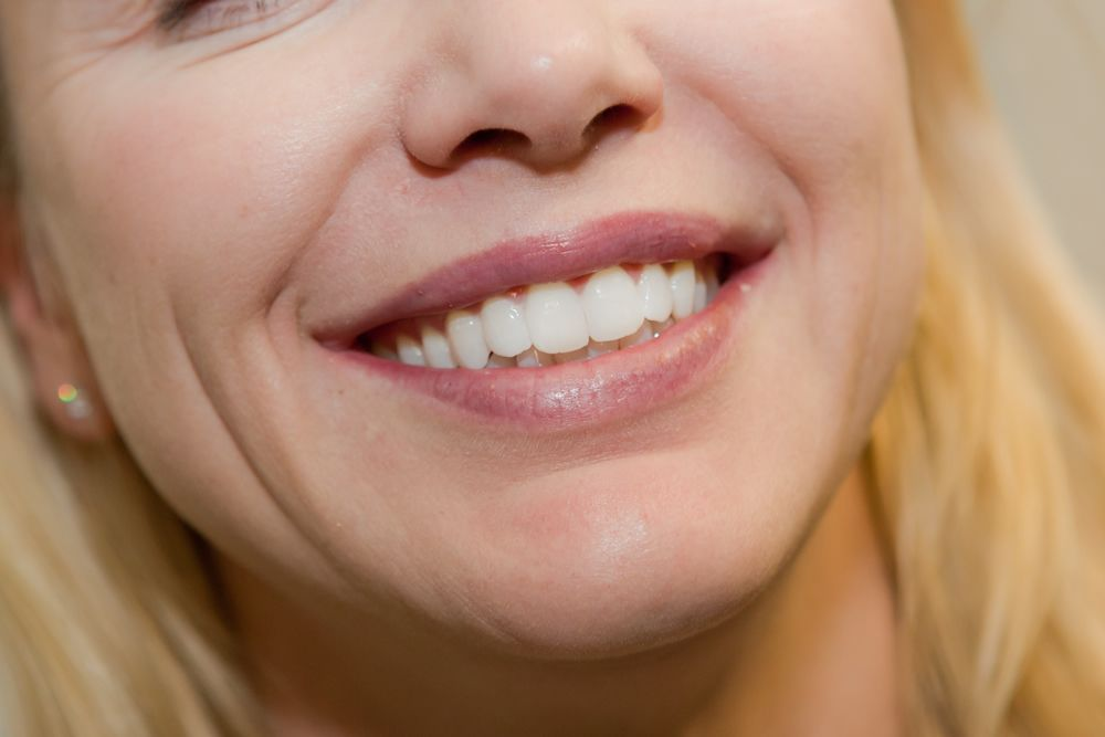 consumer reports top tooth whitening
