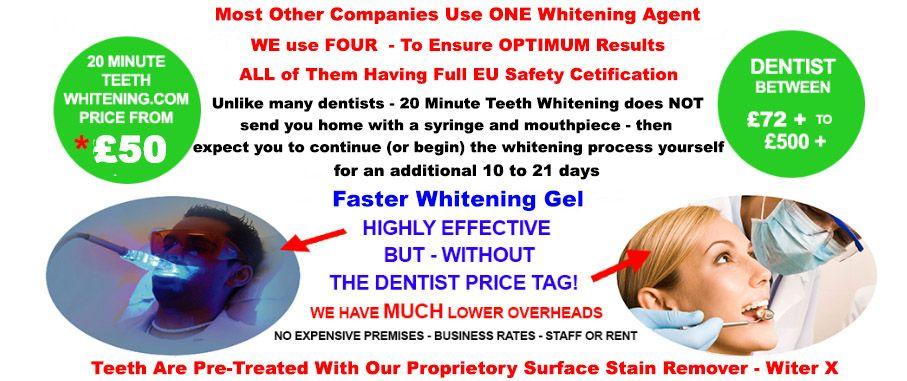 Dentist Laser teeth Whitening, Newcastle upon Tyne, Tyne and Wear, Durham Count, Teesside
